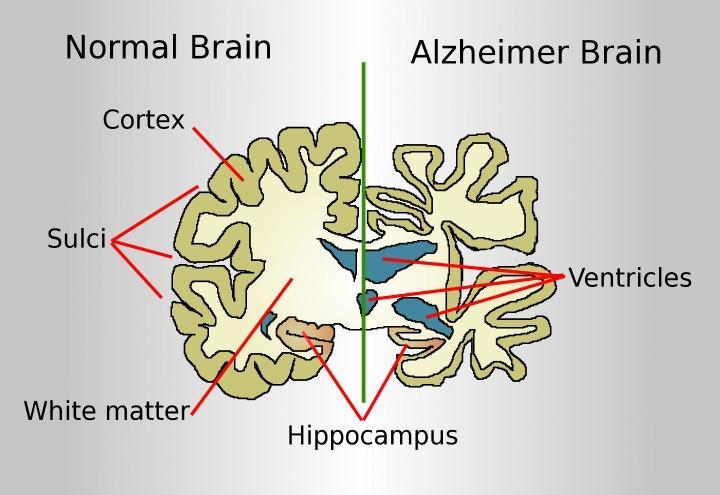Alzheimer_wikimedia_commons_2017