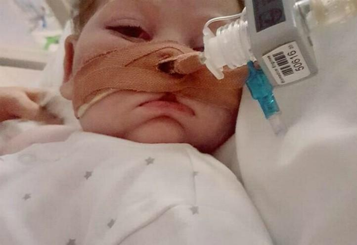 Charlie-Gard-eyes-fb