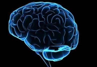 cervello_R425
