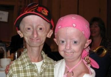 progeria_R400