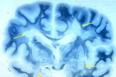 sclerosi20multipla_R400