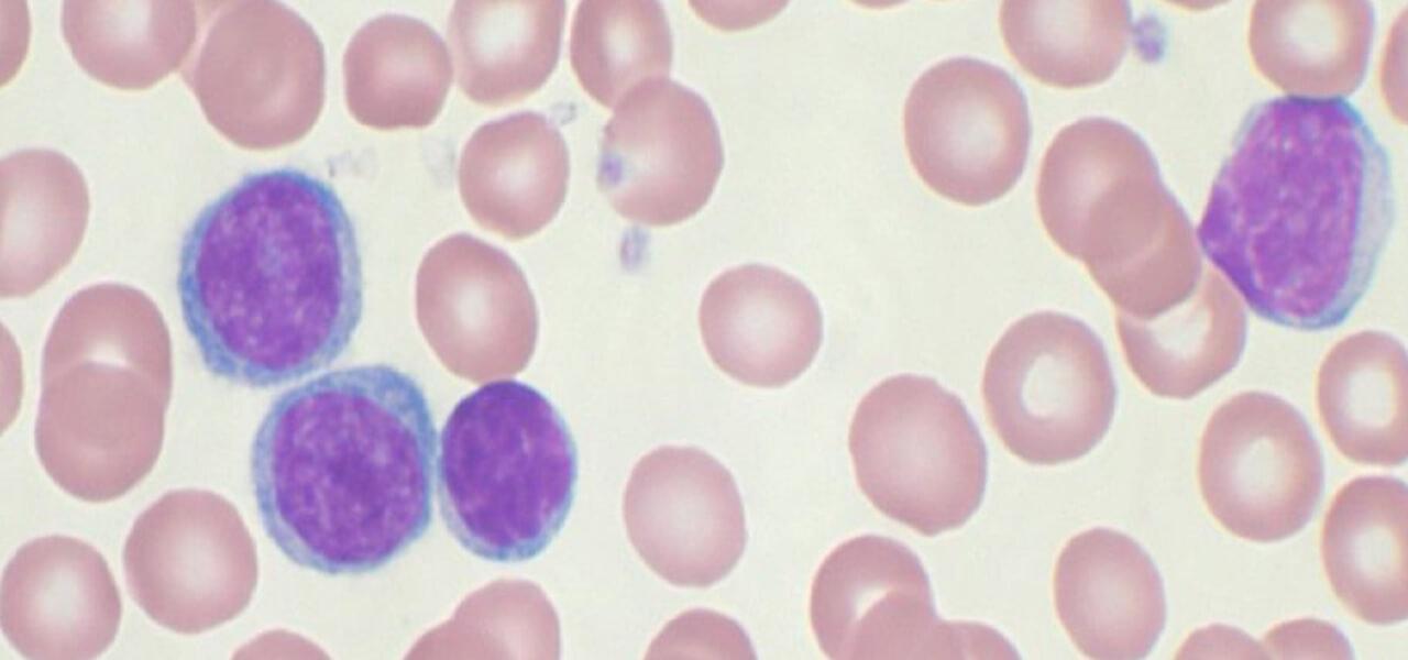 Leucemia cos'è, diagnosi e come si cura/ Terapia d'urto per ...