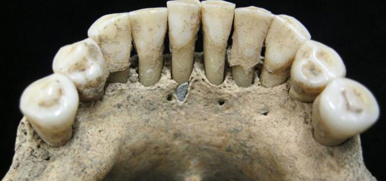 Dentatura di epoca medievale