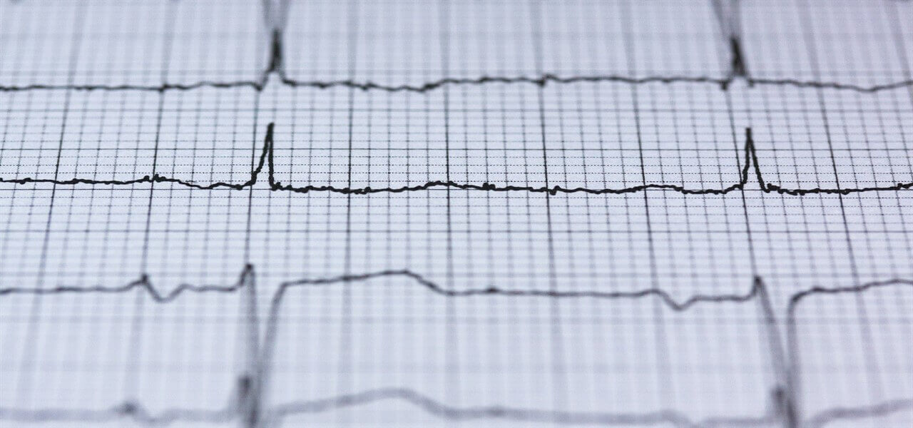 ecg elettrocardiogramma pixabay