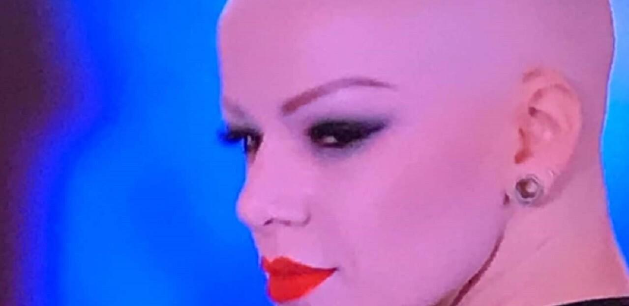 8f15a6c179 ELISA MEGGIOLARO, CHI È/ Video, critiche per l'alopecia dopo Ciao ...
