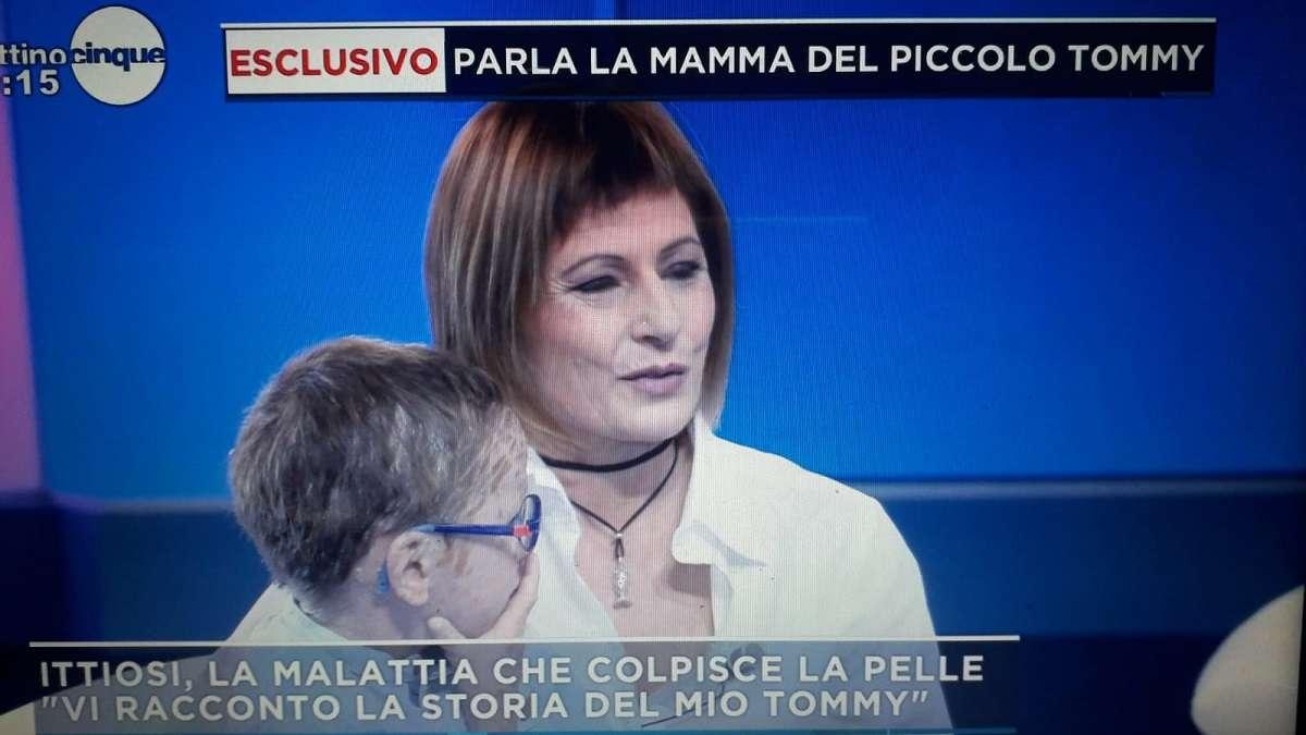 """Tommy, malato di Ittiosi lamellare/ Madre a Mattino5: """"Mi dicono ..."""