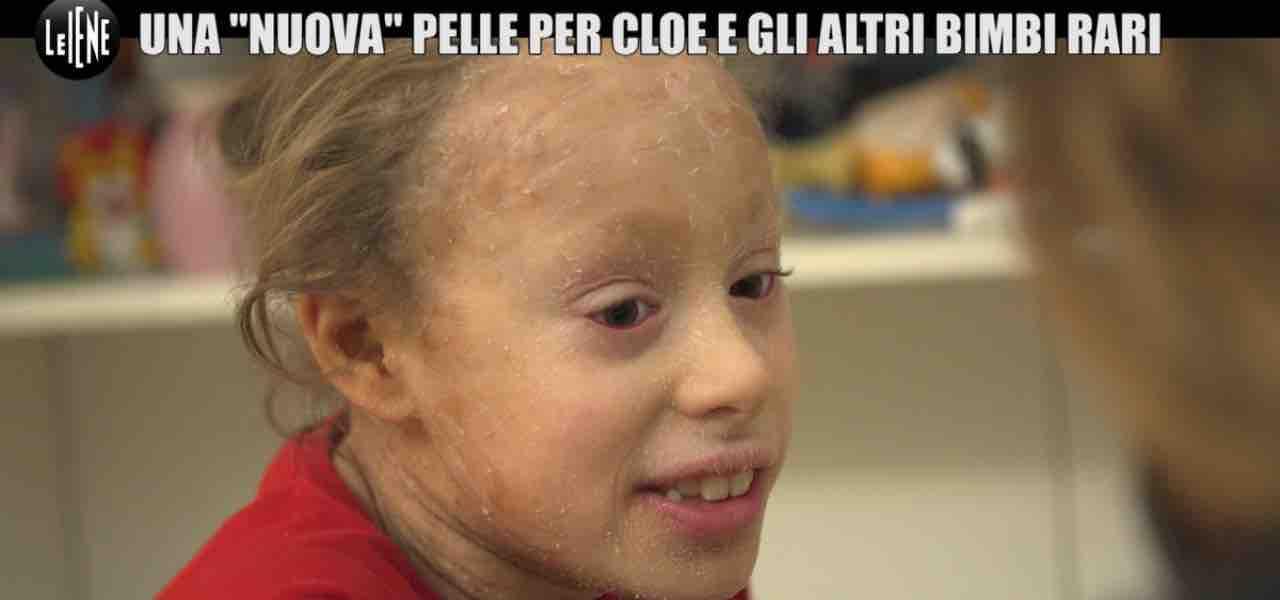"""Ittiosi, malattia pelle """"bambini arcobaleno""""/ Cloe: """"nessuno fa ..."""