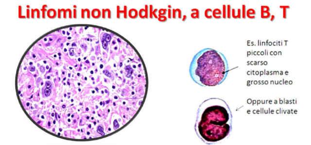 Alcuni esempi cellulari di linfomi non-Hodgkin